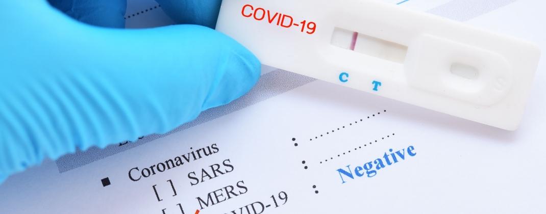 Tests antigéniques rapides : nouveauté pour les pharmacies agréés et procédure